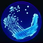 240px-Legionella_Plate_01